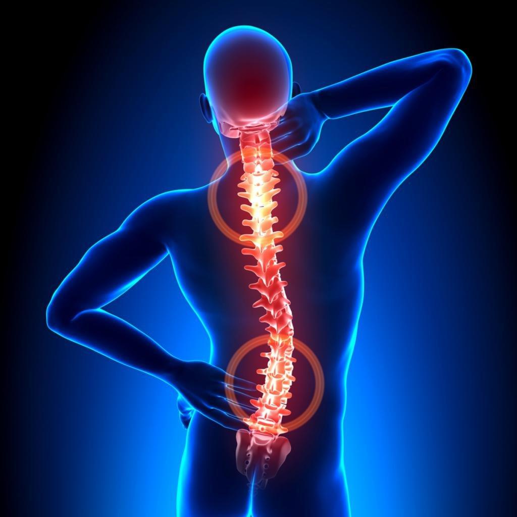 фитнес при остеохондрозе