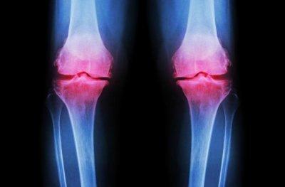 Хондропротекторы для суставов, спортивное питание: форма выпуска, особенности, аналоги и отзывы о применении