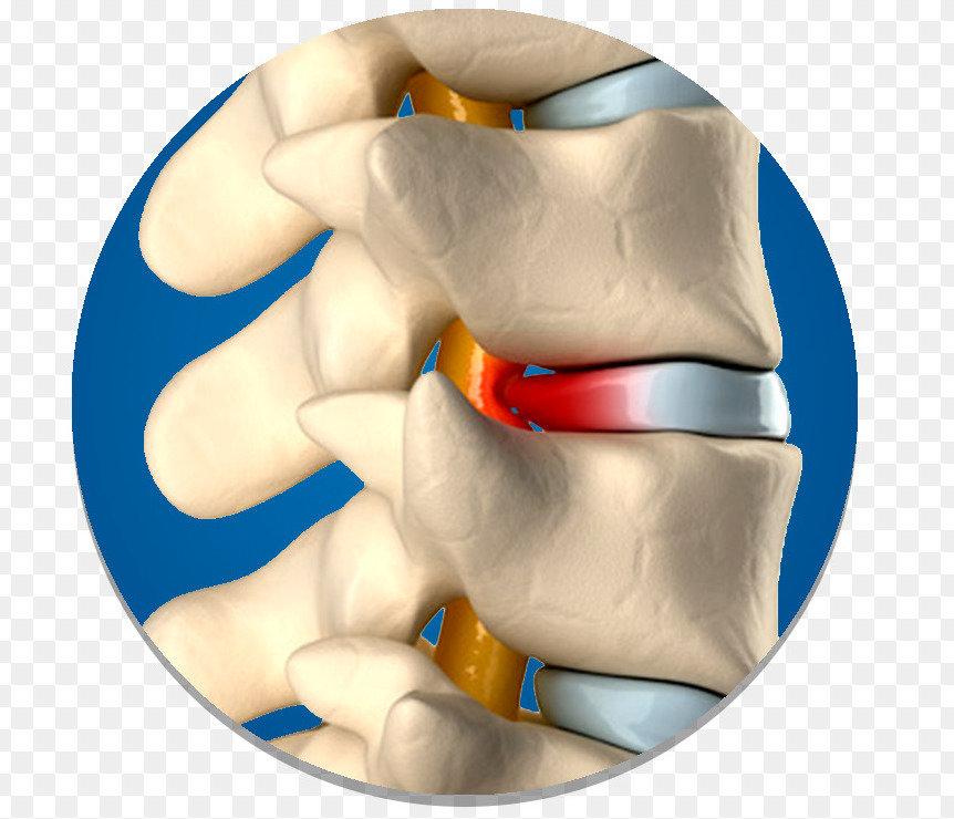 подтягивания обратным хватом какие мышцы качаются